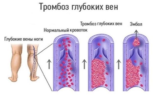 Тромбы: от чего образуются? механизмы образования и виды тромбов