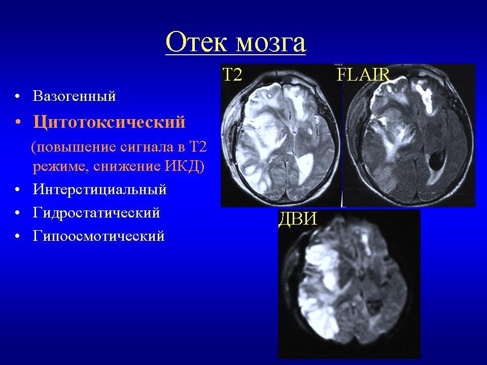 Отёк и набухание головного мозга