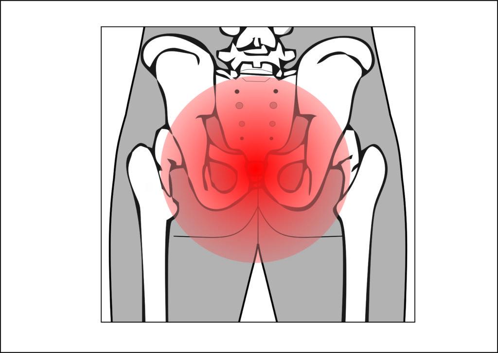 Болит копчик: причины боли, что делать при кокцигодинии, симптомы и лечение