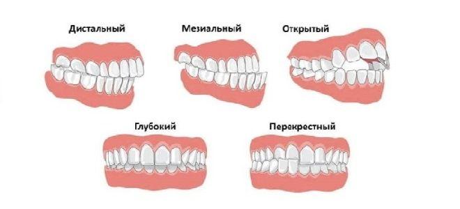 Неправильный прикус зубов у взрослых и детей: описание, виды, лечение и фото