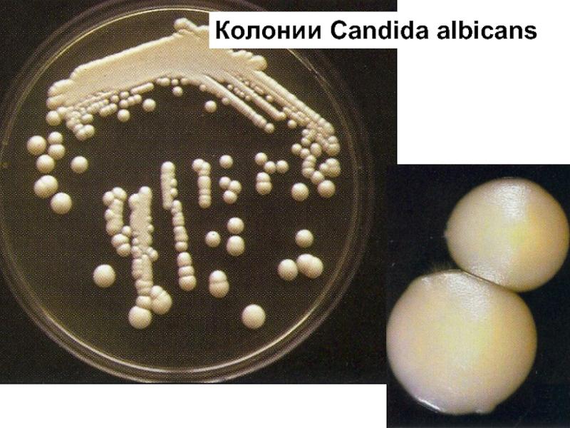 Candida albicans: распространен и иногда очень опасен