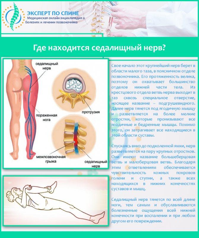 Люмбоишиалгия, симптомы и лечение в домашних условиях