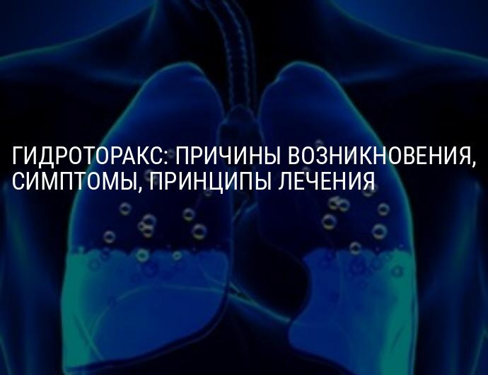 Гидроторакс легких: причины и лечение