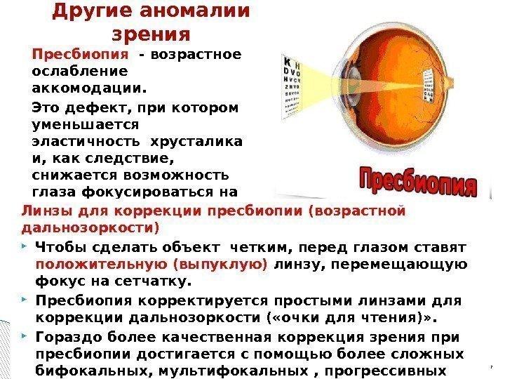 Пресбиопия глаз: что это такое у взрослых, почему развивается, лечение и коррекция возрастной дальнозоркости.
