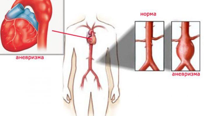 Что такое аневризма сердца и какие шансы выжить?