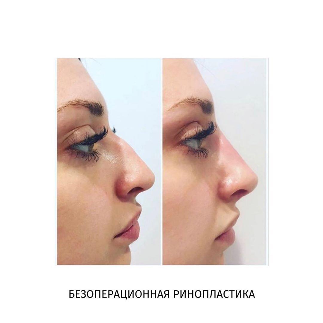 Ринопластика с остеотомией и без | ринопластика носа