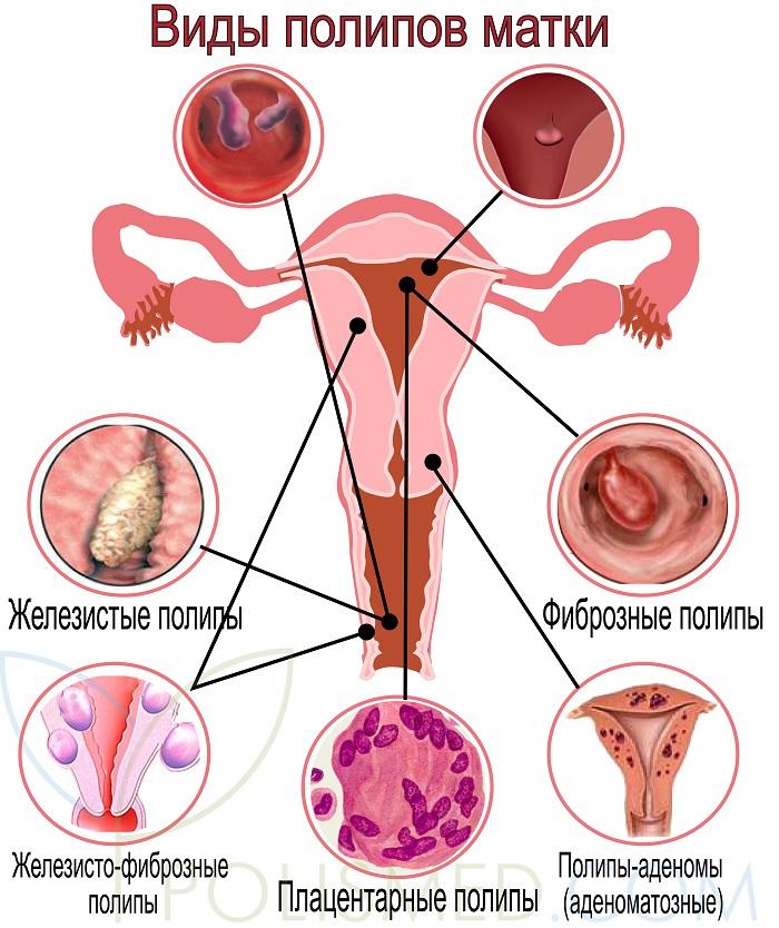 Полипы шейки матки. причины, симптомы и признаки, лечение и профилактика патологии :: polismed.com