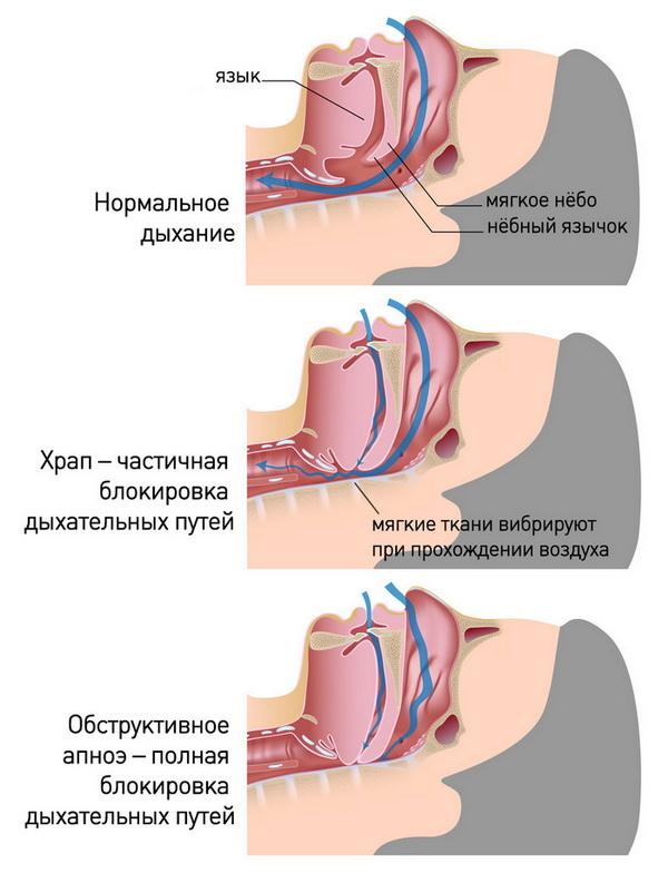 Заболевание апноэ: симптомы, причины и лечение