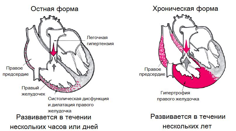 Легочное сердце: причины, лечение и прогноз