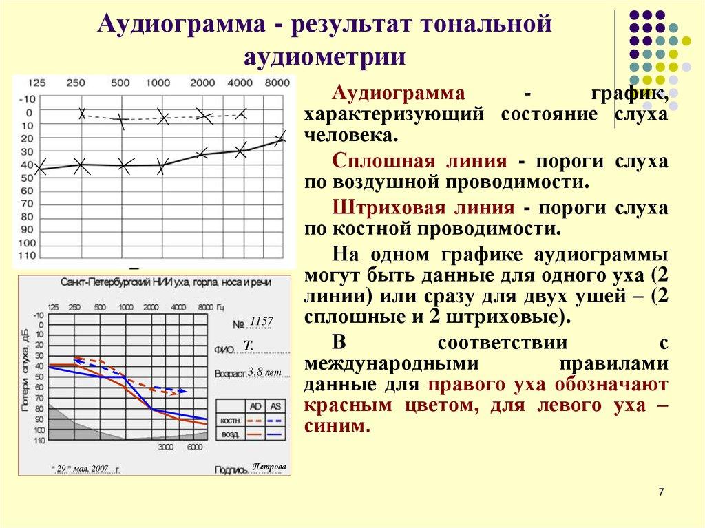 Аудиометрия -  определение. виды аудиометрии