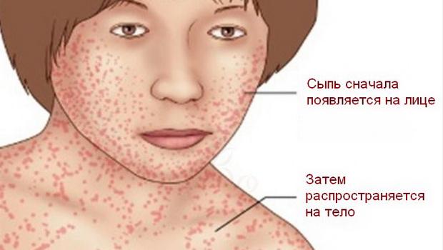 Сепсис - что это, симптомы и причины болезни, лечение и последствия заражения крови