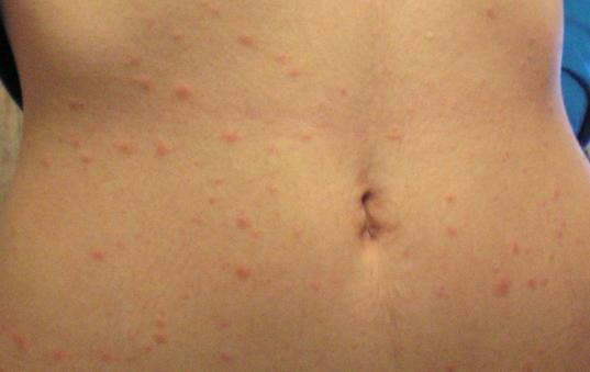 Кожная сыпь  теле - как лечить? причины и лечение кожной сыпи.
