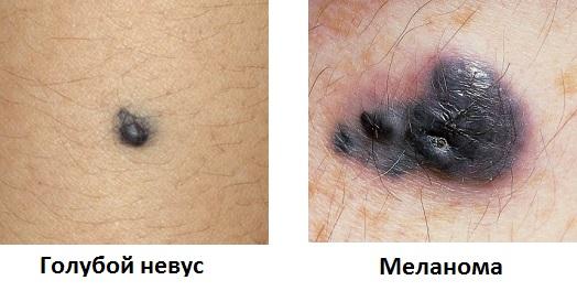 Голубой невус: фото кожи, что это такое, прогноз и удаление