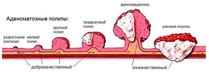 Полипы в матке: как правильно лечить. методы, прогноз