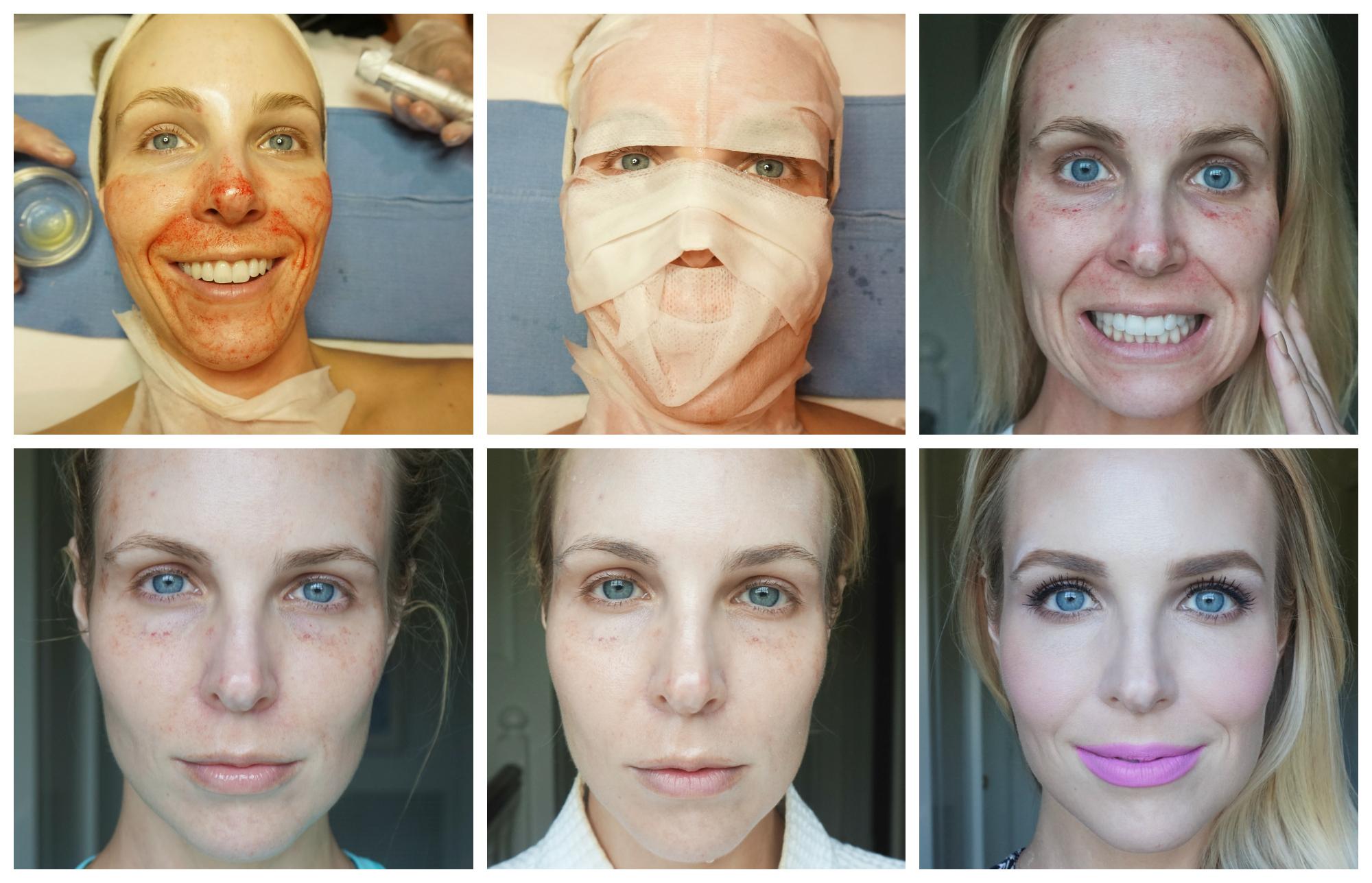 Лазерная шлифовка (подтяжка) лица: что это такое, отзывы, фото до и после омоложения