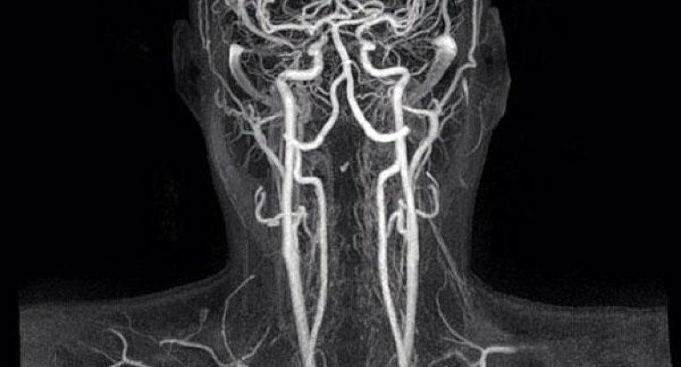 Мр ангиография: как проводится, что показывает, подготовка к исследованию сосудов головного мозга
