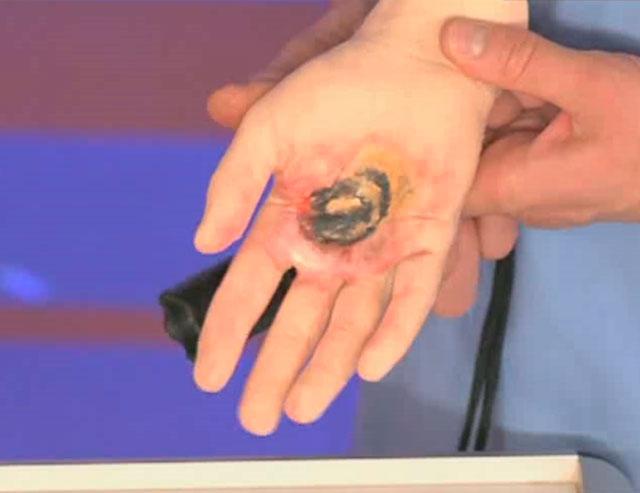 Первая помощь при поражении электрическим током: что можно и нельзя делать - лайфхакер