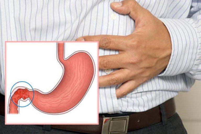 Что такое катаральный бульбит желудка — виды, лечение и правильная диета