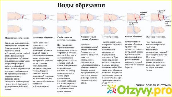 Циркумцизия (обрезание)-что это такое: как делается операция
