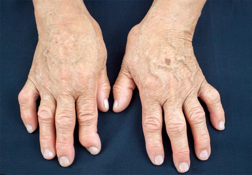 Ревматоидный артрит - причины, симптомы, лечение