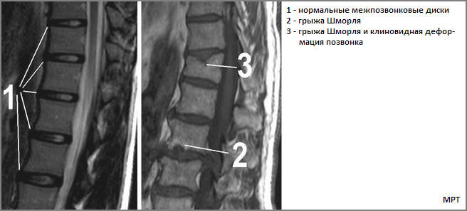 Грыжа шморля грудного отдела позвоночника: лечение, чем опасны мелкие грыжи в грудном отделе
