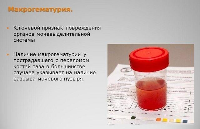 Гематурия (кровь в моче у женщин): что это может быть, причины, лечение