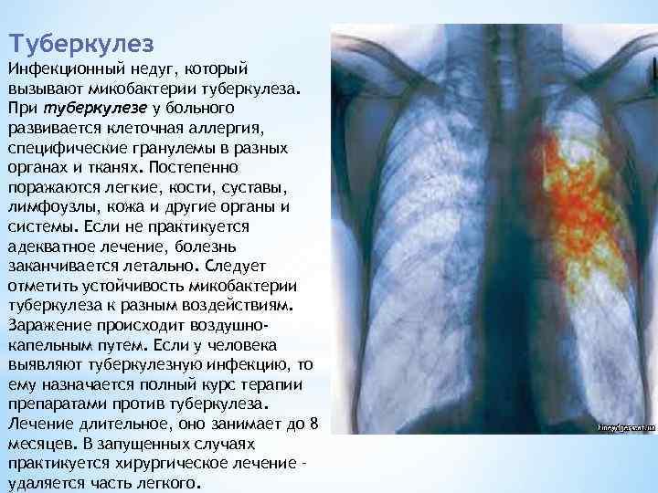 Болят ли легкие при туберкулезе и почему это происходит?