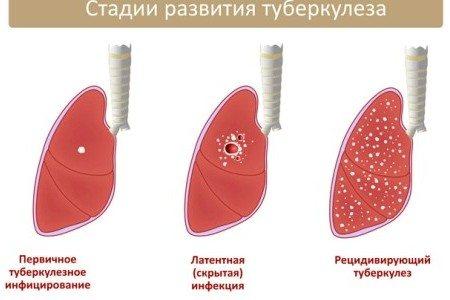 Лечение пневмосклероза: основные принципы | компетентно о здоровье на ilive