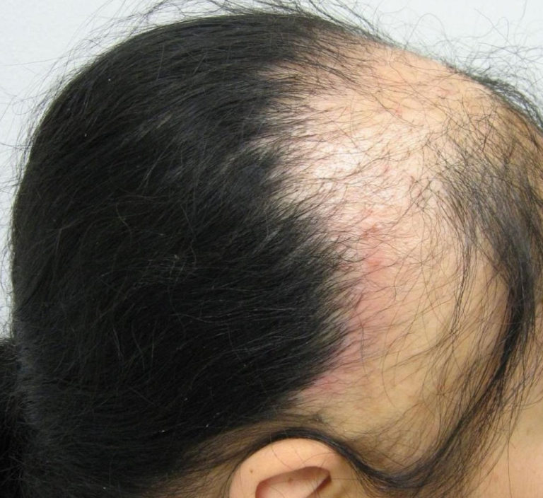 Телогеновая алопеция: пушковые волосы | moninomama.ru