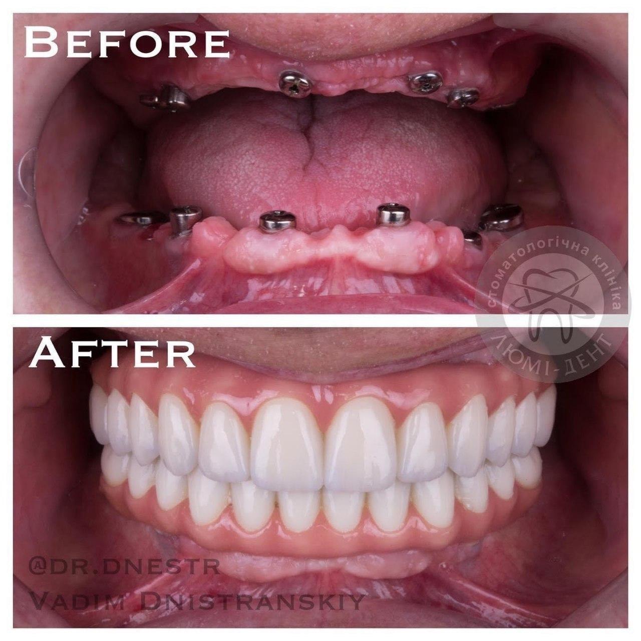 Виды имплантов зубов — какие бывают зубные имплантанты