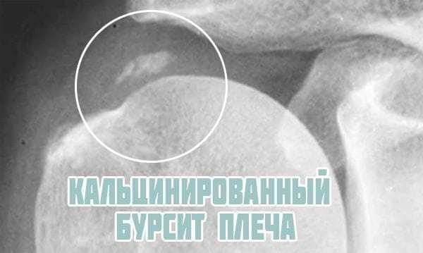 Бурсит плечевого сустава симптомы и лечение