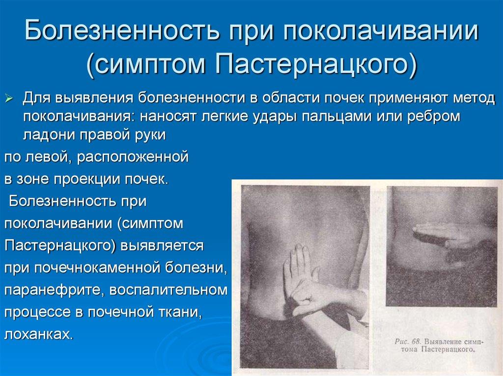 Симптом пастернацкого — что это, причины, лечение. определение симптома пастернацкого — простое, но информативное диагностическое исследование