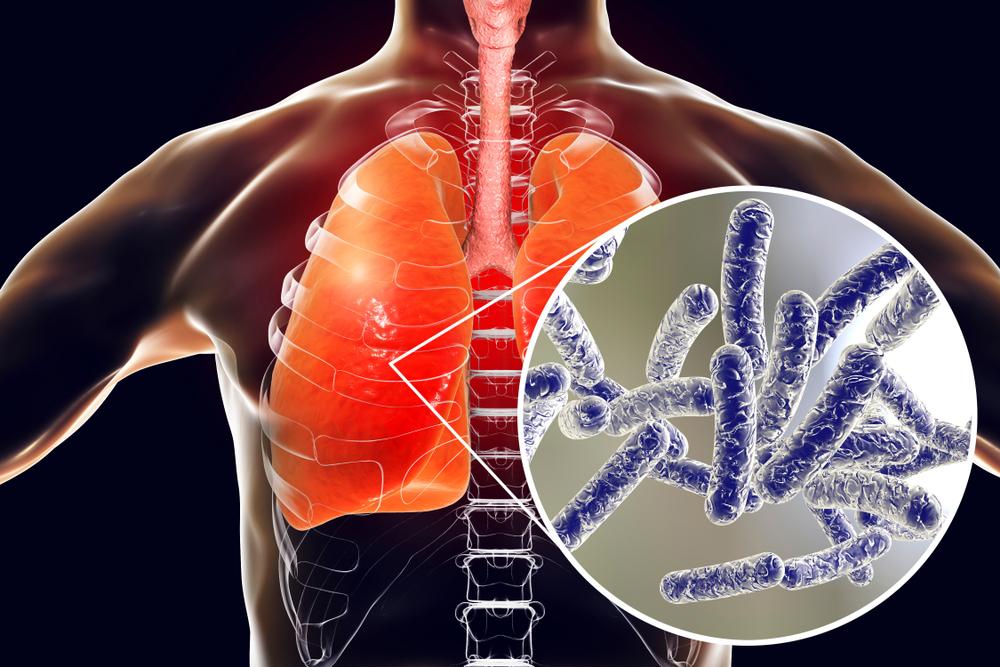 Болезнь легионеров, симптомы и лечение, отличия от обычной пневмонии