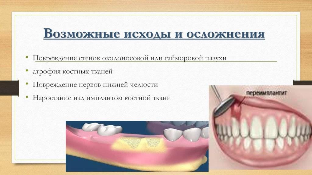 Сколько стоит имплант зуба. цены на различные модели имплантов.
