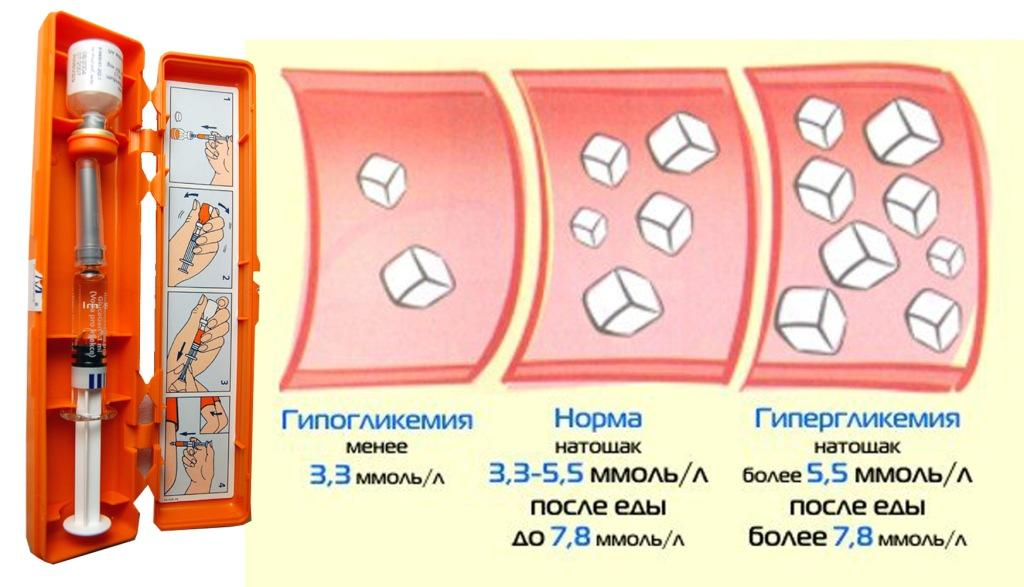 Гликемия — википедия с видео // wiki 2