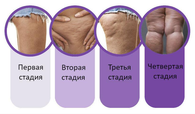 Как убрать целлюлит: массаж, крем, обертывания