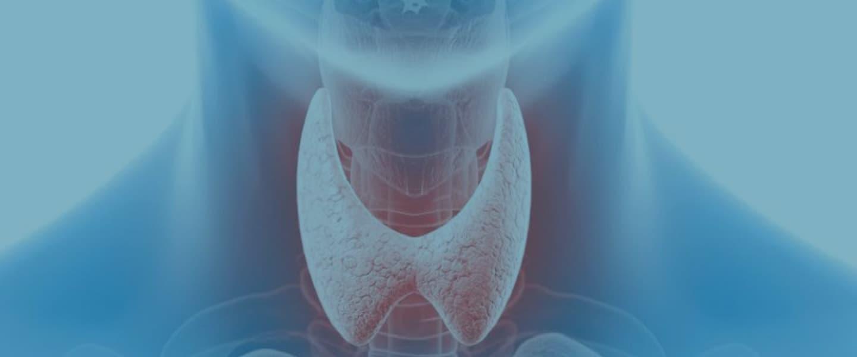 Хронический аутоиммунный тиреоидит: симптомы, лечение, диагностика, осложнения и профилактика заболевания
