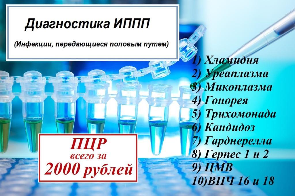 Венерические заболевания (зппп, иппп): что это такое, список, симптомы у женщин и мужчин