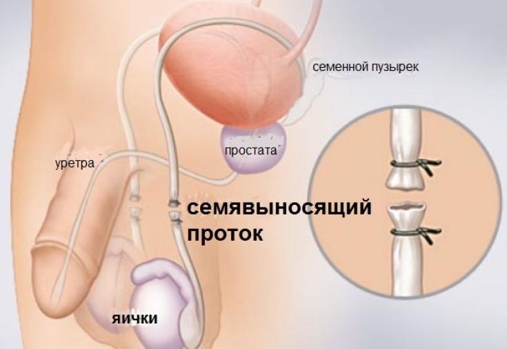 Вазэктомия: что это такое, обратима ли мужская стерилизация