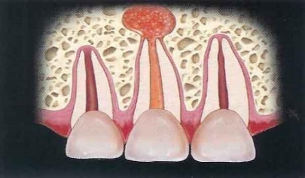 Киста на корне зуба — удалять или лечить?