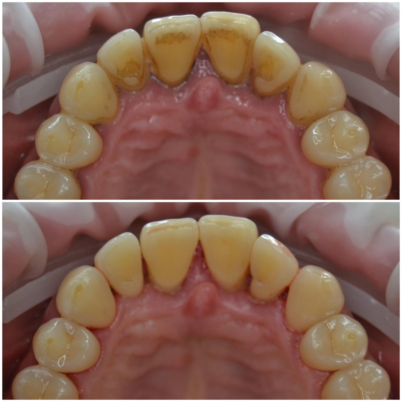 Зубной камень — википедия. что такое зубной камень