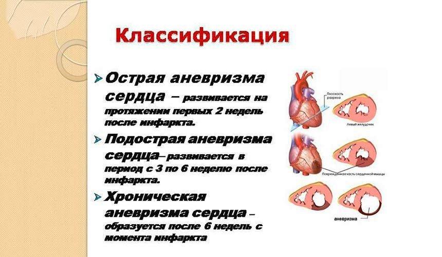 Аневризма аорты сердца: причины, симптомы, лечение