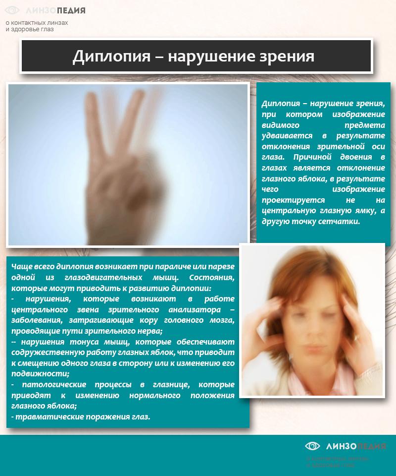 Диплопия – причины, лечение, симптомы, диагностика, коррекция