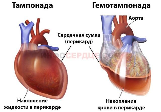 Тампонада сердца: что это такое, причины, симптомы и лечение