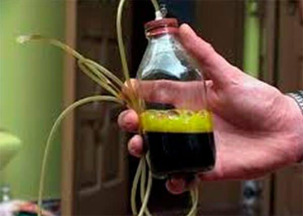 Желчь - это важная секреция в организме человека. ее виды, функции и возможные патологии