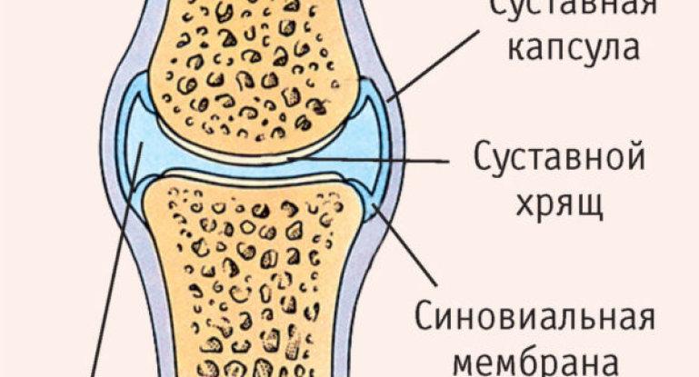 Жидкость в коленном суставе: как лечить, причины
