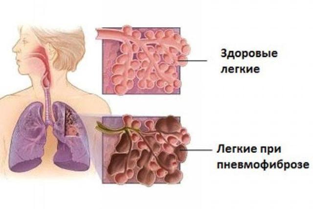 Пневмофиброз | симптомы и лечение пневмофиброза | компетентно о здоровье на ilive