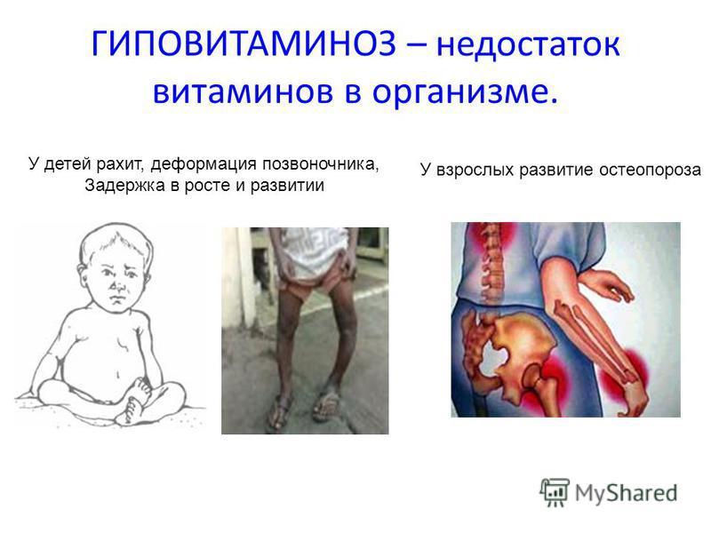 Гиповитаминоз - медицинский справочник