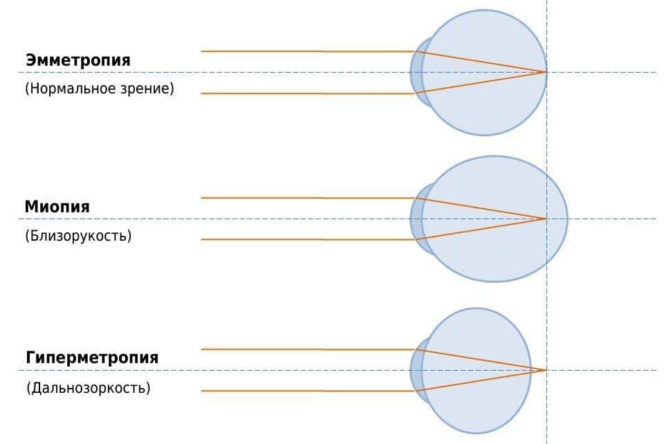 Гиперметропия слабой степени у детей и взрослых - что это такое и при какой степени нарушения диоптрий ставится такой диагноз