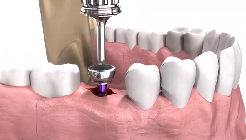 Что такое базальная имплантация зубов и сколько стоит процедура?